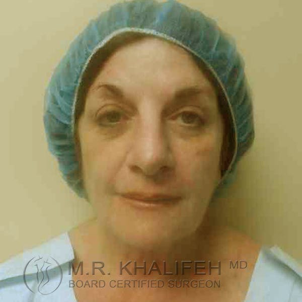 Facelift Gallery - Patient 3764169 - Image 9