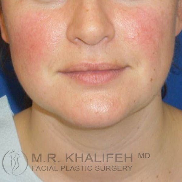 Chin & Neck Liposuction Gallery - Patient 3764171 - Image 5