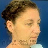 Facelift Gallery - Patient 3764238 - Image 1