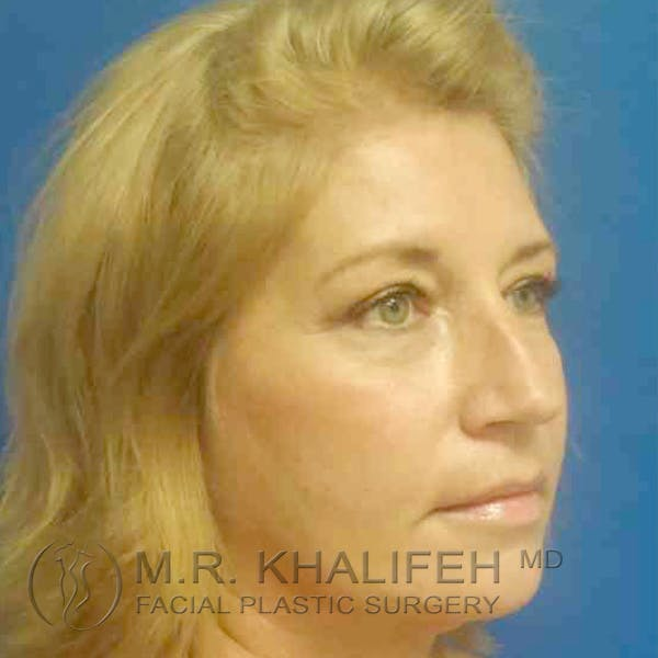 Facelift Gallery - Patient 3764238 - Image 2