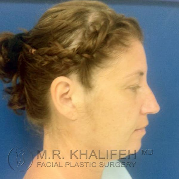 Facelift Gallery - Patient 3764238 - Image 5