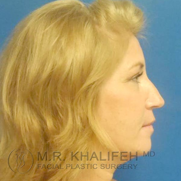 Facelift Gallery - Patient 3764238 - Image 6