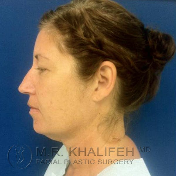 Facelift Gallery - Patient 3764238 - Image 7