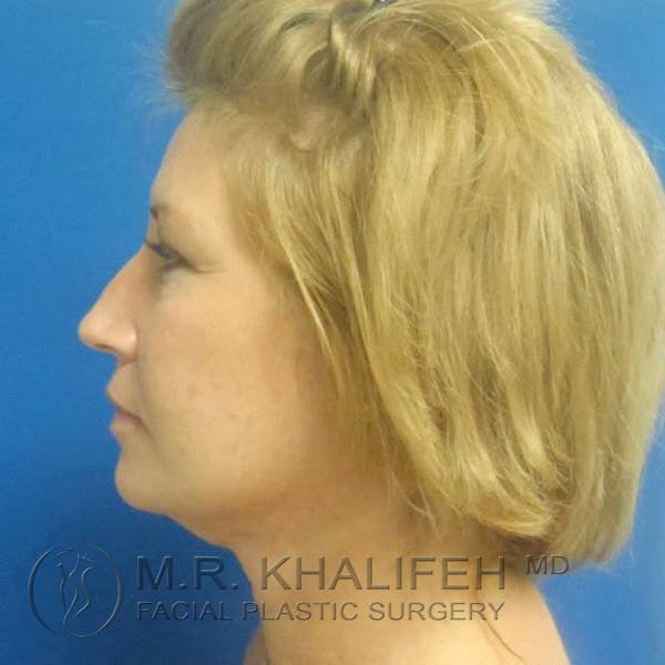 Facelift Gallery - Patient 3764238 - Image 8
