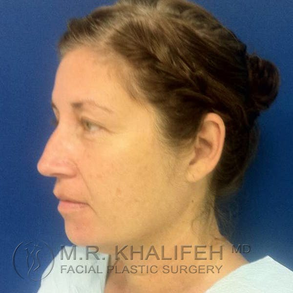 Facelift Gallery - Patient 3764238 - Image 9