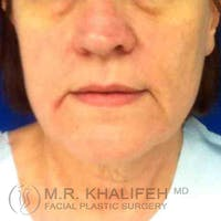 Facelift Gallery - Patient 3764240 - Image 1