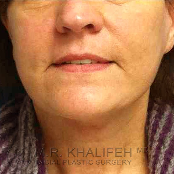 Facelift Gallery - Patient 3764240 - Image 2