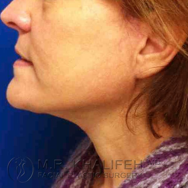 Facelift Gallery - Patient 3764240 - Image 4