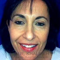 Facelift Gallery - Patient 3764245 - Image 1