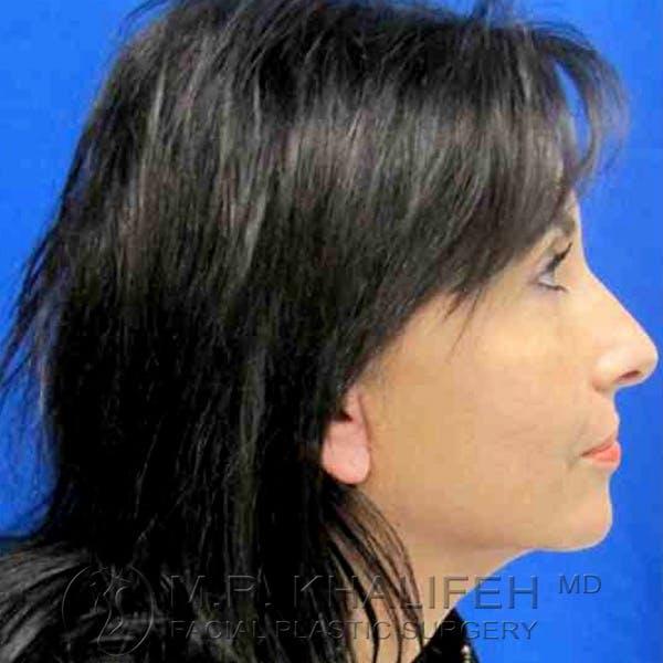Facelift Gallery - Patient 3764245 - Image 6