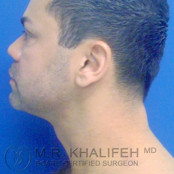 Chin & Neck Liposuction Gallery - Patient 3764246 - Image 2