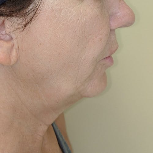 Facelift Gallery - Patient 3764249 - Image 3