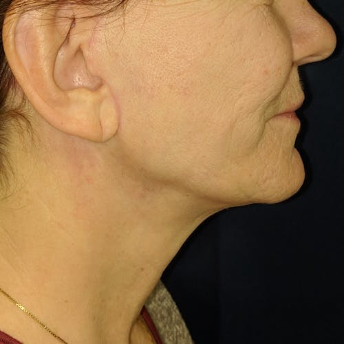 Facelift Gallery - Patient 3764249 - Image 4
