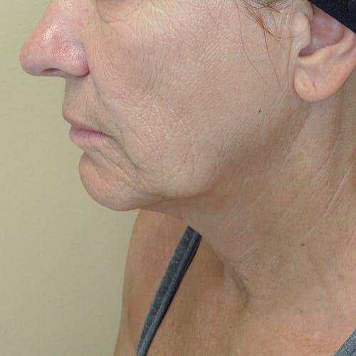 Facelift Gallery - Patient 3764249 - Image 5