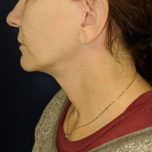 Facelift Gallery - Patient 3764249 - Image 6