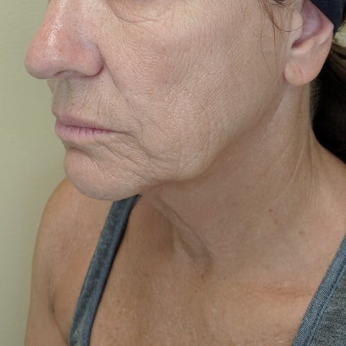 Facelift Gallery - Patient 3764249 - Image 7