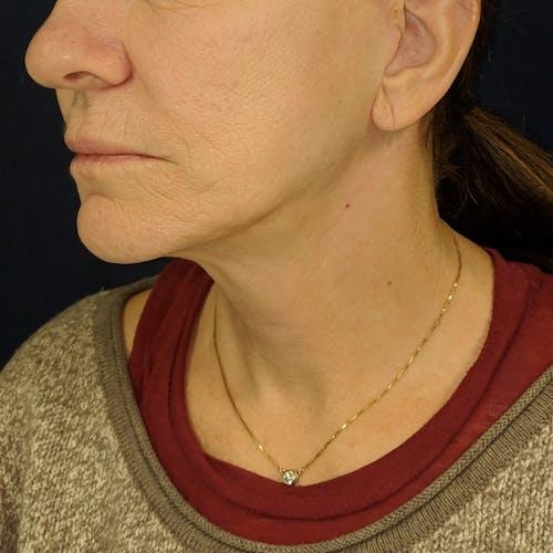 Facelift Gallery - Patient 3764249 - Image 8