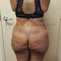Brazilian Buttock Lift Gallery - Patient 3764254 - Image 1