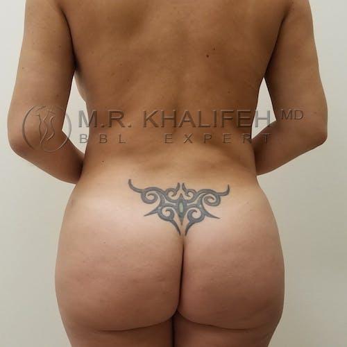 Brazilian Buttock Lift Gallery - Patient 3764347 - Image 2