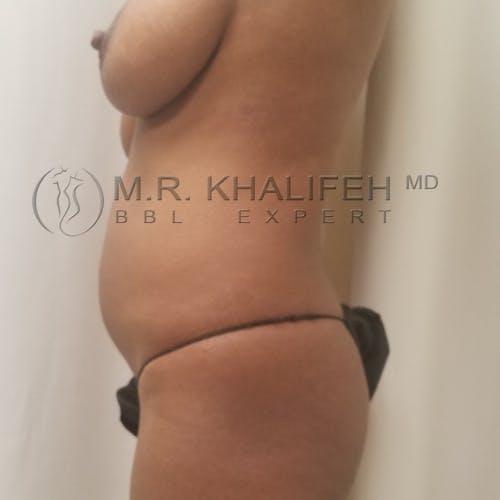 Brazilian Buttock Lift Gallery - Patient 3764412 - Image 5