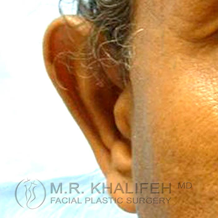 Otoplasty Gallery - Patient 3766952 - Image 1
