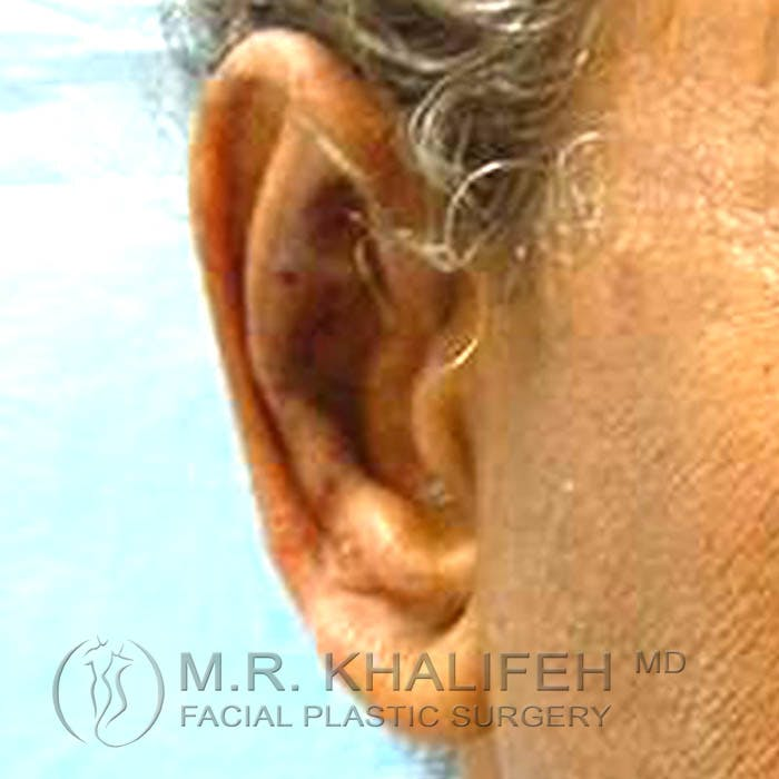 Otoplasty Gallery - Patient 3766952 - Image 2
