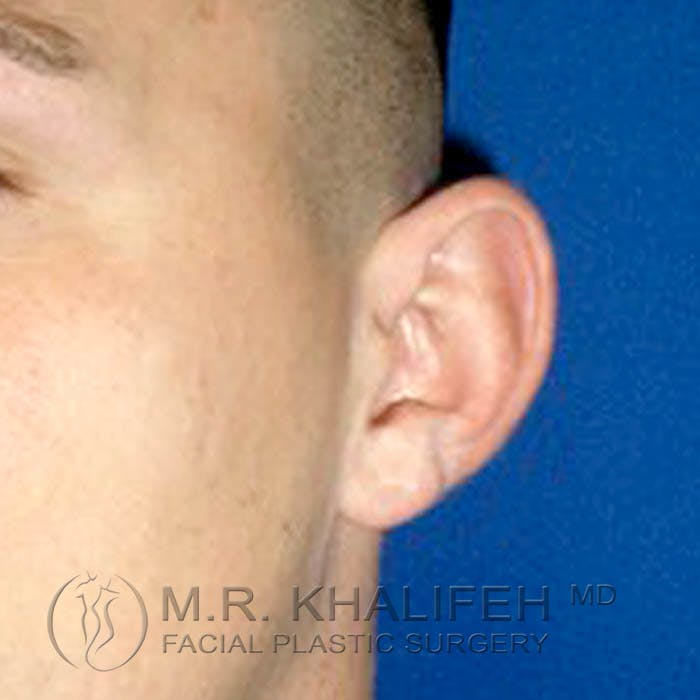 Otoplasty Gallery - Patient 3766988 - Image 1