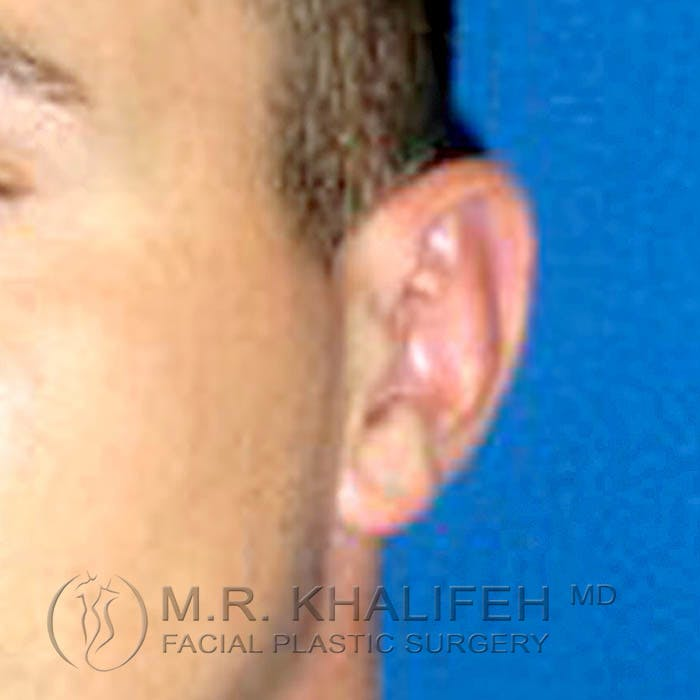 Otoplasty Gallery - Patient 3766988 - Image 2