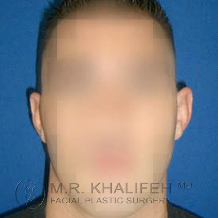 Otoplasty Gallery - Patient 3766988 - Image 3