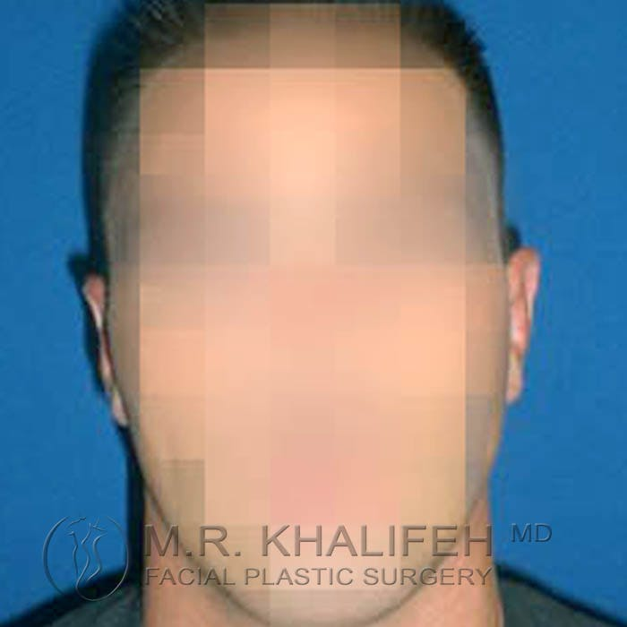 Otoplasty Gallery - Patient 3766988 - Image 4