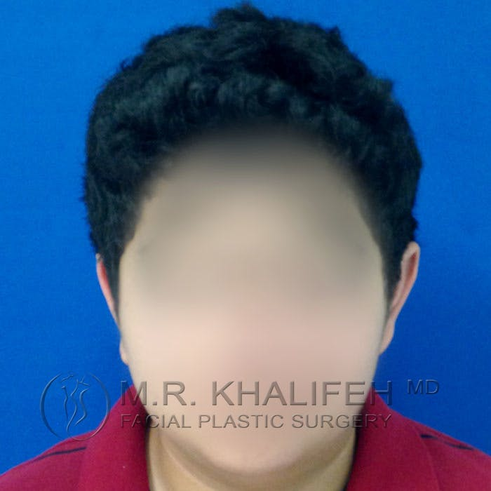 Otoplasty Gallery - Patient 3767049 - Image 2