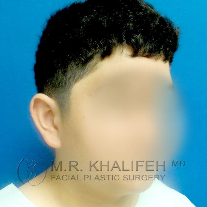 Otoplasty Gallery - Patient 3767049 - Image 3