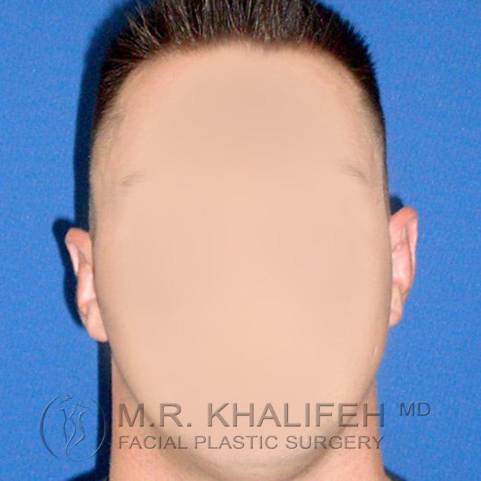 Otoplasty Gallery - Patient 3767126 - Image 1