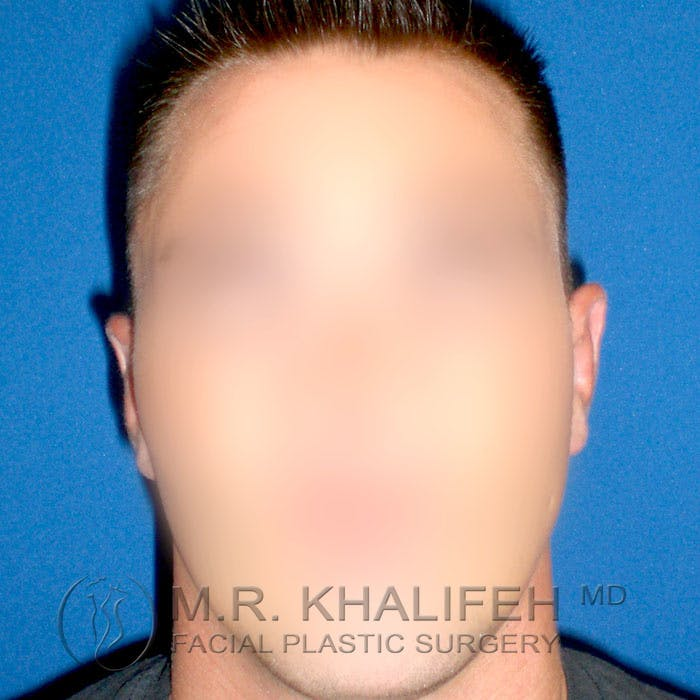 Otoplasty Gallery - Patient 3767126 - Image 2