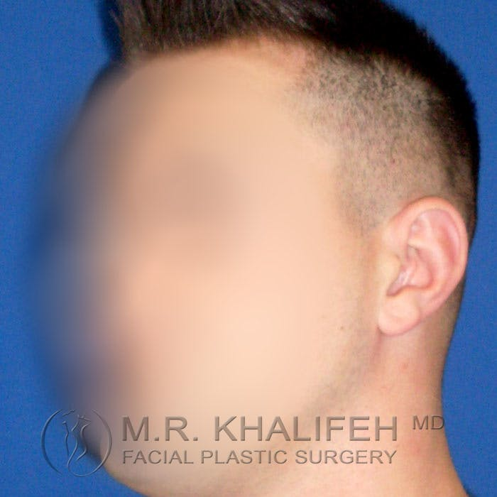 Otoplasty Gallery - Patient 3767126 - Image 3