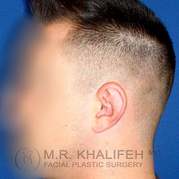 Otoplasty Gallery - Patient 3767126 - Image 5