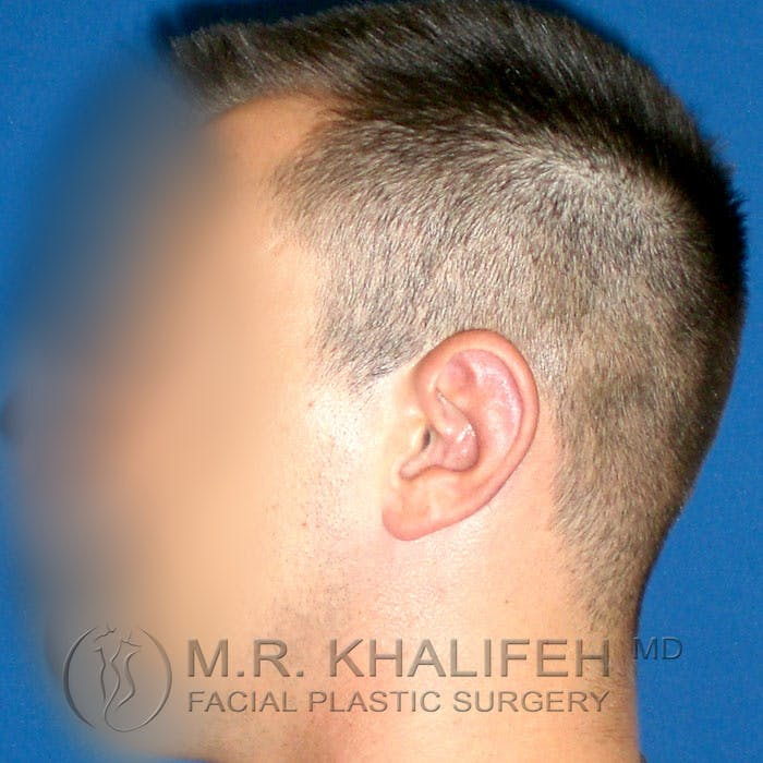 Otoplasty Gallery - Patient 3767126 - Image 6