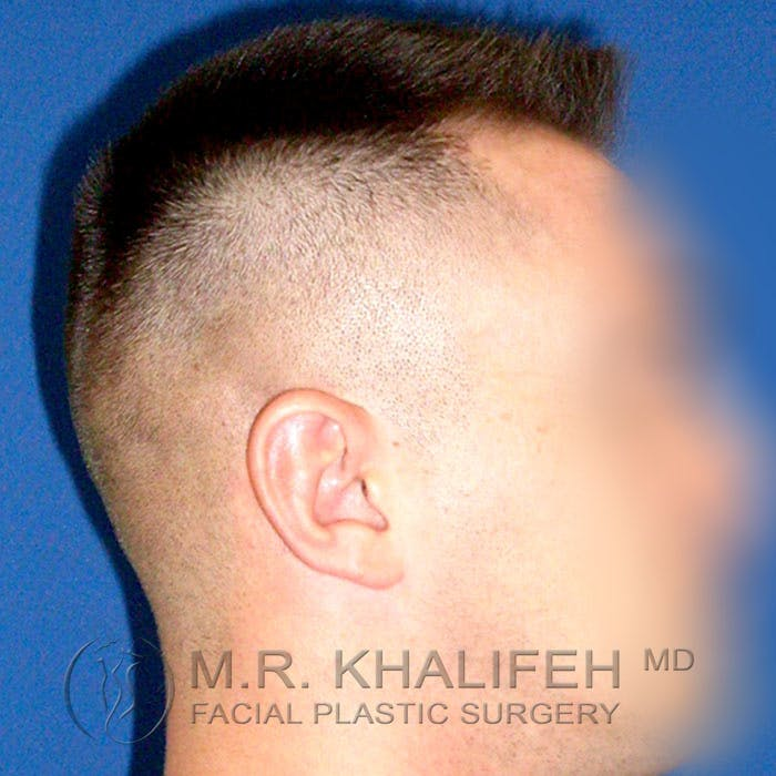 Otoplasty Gallery - Patient 3767126 - Image 9