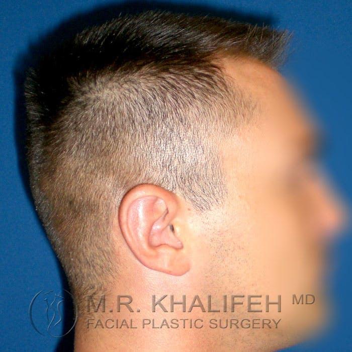 Otoplasty Gallery - Patient 3767126 - Image 10