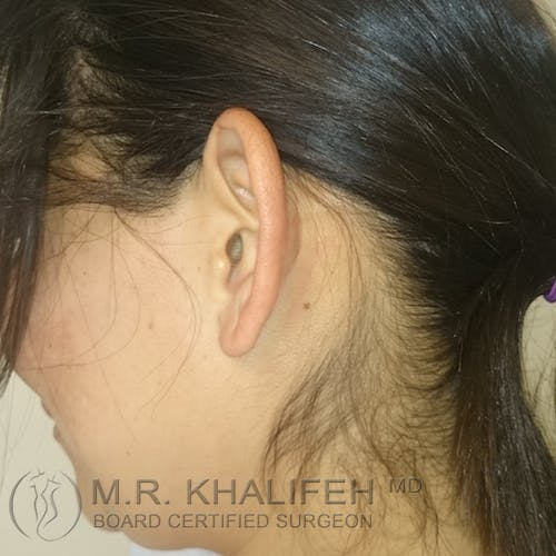 Otoplasty Gallery - Patient 3767183 - Image 1