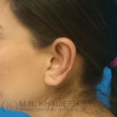 Otoplasty Gallery - Patient 3767183 - Image 2