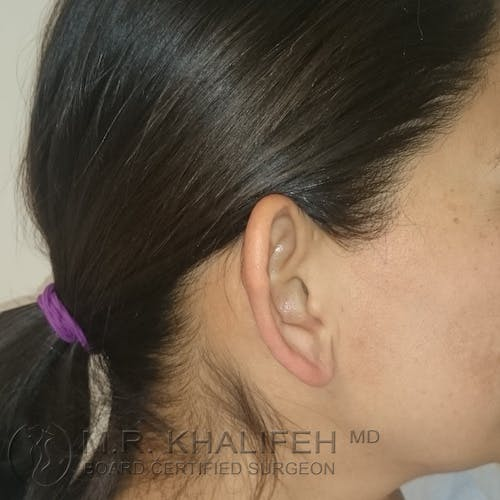 Otoplasty Gallery - Patient 3767183 - Image 3