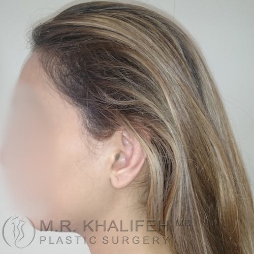 Otoplasty Gallery - Patient 3767222 - Image 2