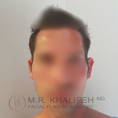 Otoplasty Gallery - Patient 3767293 - Image 1