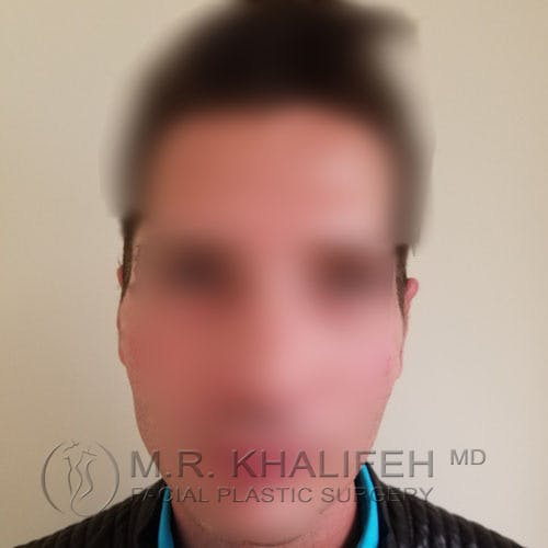 Otoplasty Gallery - Patient 3767293 - Image 2