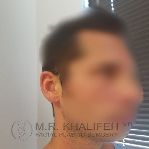 Otoplasty Gallery - Patient 3767293 - Image 3