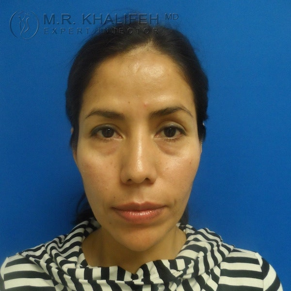 Fillers Gallery - Patient 3768588 - Image 1