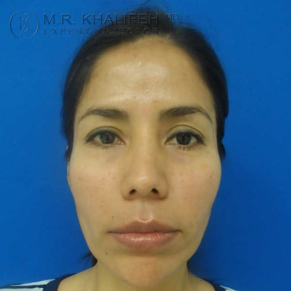 Fillers Gallery - Patient 3768588 - Image 2