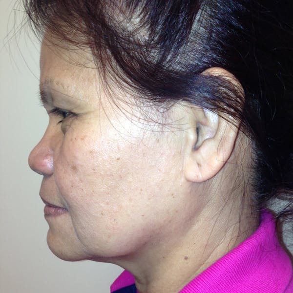 Ultherapy Facial Skin Tightening Gallery - Patient 3768639 - Image 1