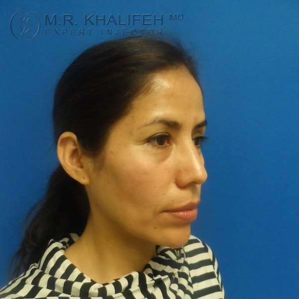 Fillers Gallery - Patient 3768588 - Image 3